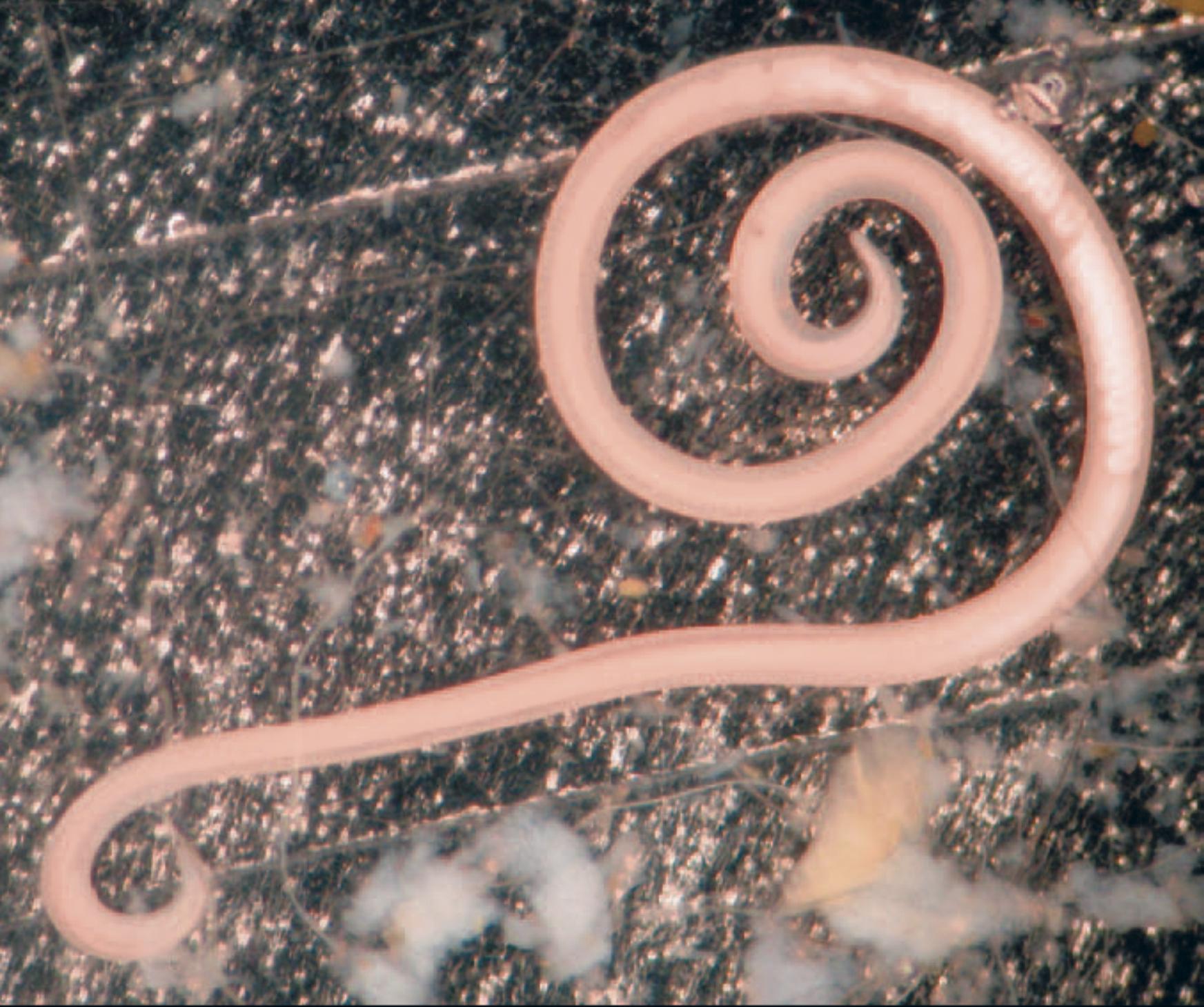 черви паразиты в теле человека